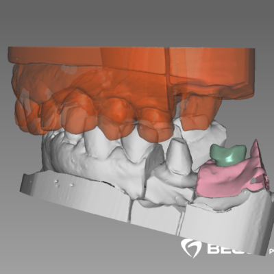 Jean-Paul_001_DentalCadScreenshot