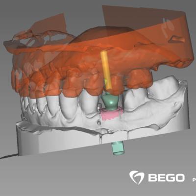 peyrucq_001_DentalCadScreenshot2